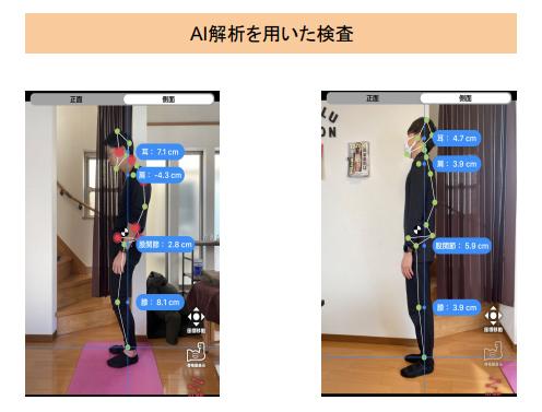 AI検査の画像